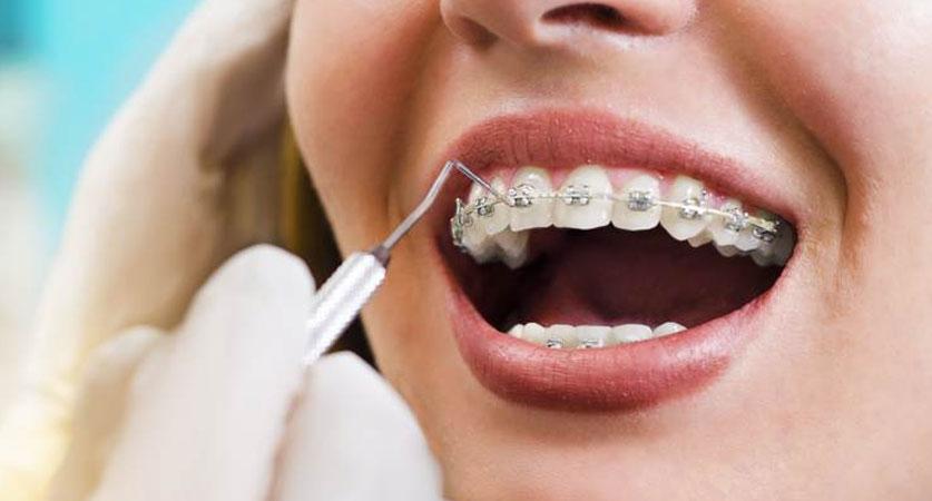 Orthodontist Treatment