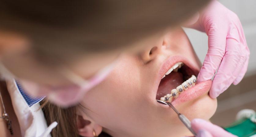 Aventura orthodontists