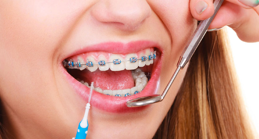 free orthodontist consultation