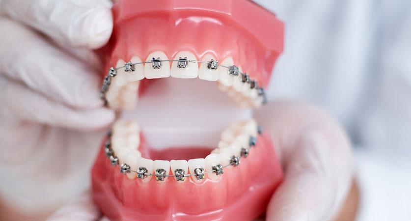best braces colors