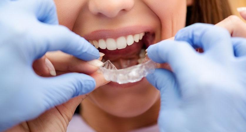 Invisalign dentist near me