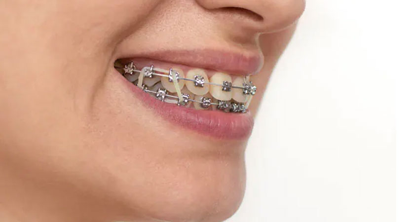 braces near me